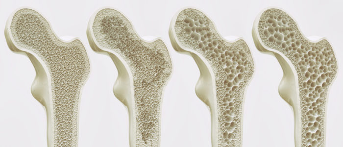 The,Four,Stages,Of,Osteoporosis,-,Illustration