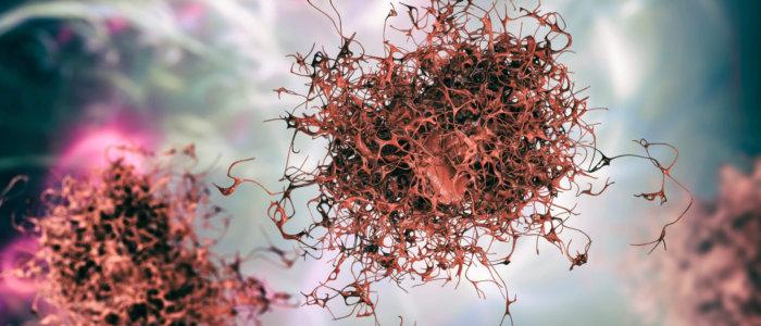 Cancer,Cell,,Malignant,Tumor,Cell,,3d,Illustration